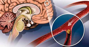 нарушение кровообращения головного мозга у ребенка симптомы и лечение