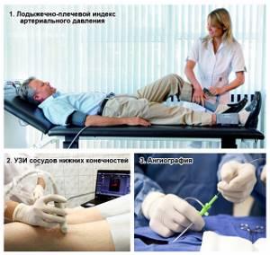 нарушение кровообращения в ногах симптомы лечение