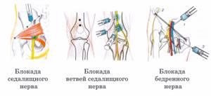 невралгия ноги симптомы и лечение в домашних условиях
