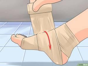 неврит ноги симптомы лечение