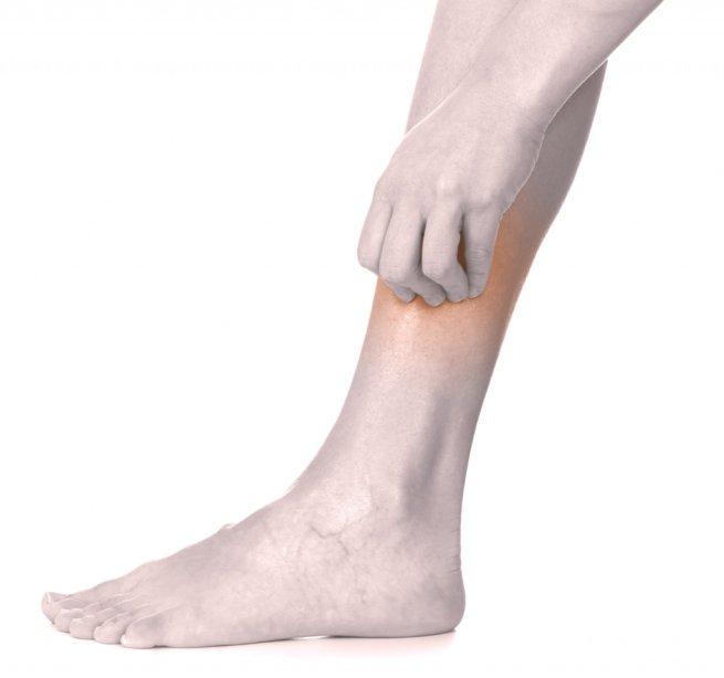 нейродермит ноги симптомы и лечение