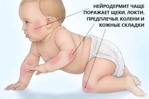 нейродермит симптомы и лечение на ногах у детей
