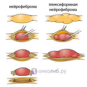 нейрофиброматоз у детей симптомы лечение комаровский