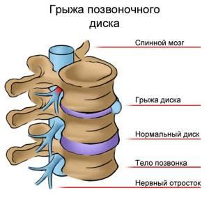 онемение правой ноги от бедра до пальцев ступни симптомы лечение