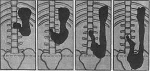 опущение желудка у детей симптомы лечение