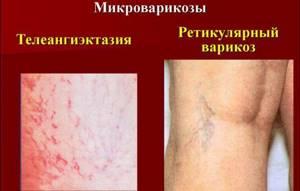 осложнения варикозное расширение вен на ногах симптомы и лечение