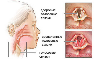 острый трахеоларингит причины симптомы и лечение