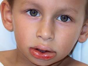 отек квинке у ребенка симптомы и лечение в домашних условиях