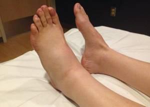 отек стопы ноги симптомы и лечение