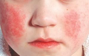 парвовирусная инфекция у детей симптомы лечение