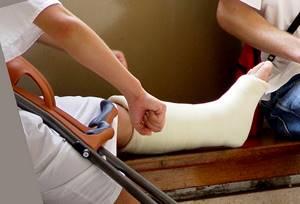 перелом ноги симптомы и лечение