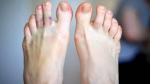 перелом пальца ноги симптомы и лечение в домашних условиях