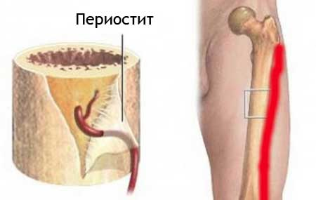 периостит ноги симптомы и лечение