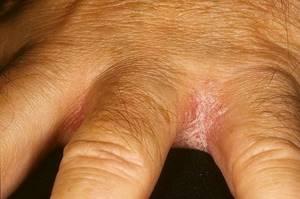 почему сохнут кисти рук и ноги симптомы и лечение