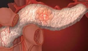 поджелудочная железа лечение у детей симптомы