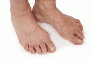 полиартрит на ногах симптомы и лечение