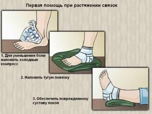 при растяжении мышц ноги симптомы и лечение