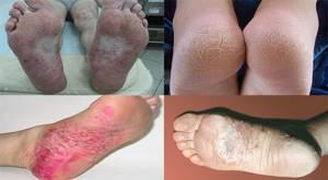 псориаз на ногах симптомы и лечение