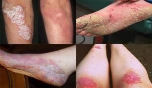 псориаз ноги лечение симптомы