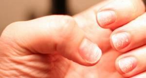 псориаз ногтей на ногах симптомы лечение