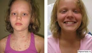 псориаз симптомы лечение у детей