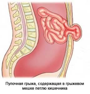 пупочная грыжа у детей симптомы лечение