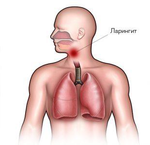 рефлюкс ларингит симптомы лечение