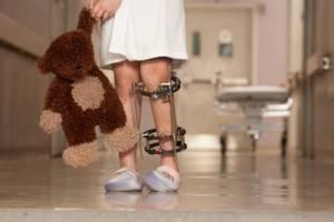 ревматоидный артрит симптомы лечение при дети