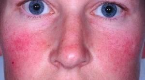 розацеа симптомы и лечение у детей