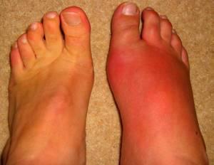 рожистое воспаление ноги симптомы и лечение народные методы