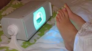 рожистое воспаление ноги симптомы и лечение рецидив