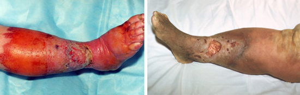 рожистое воспаление ноги симптомы и лечение слоновость