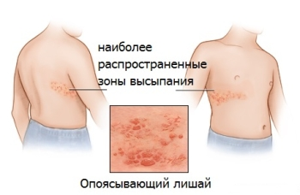розовый лишай симптомы лечение у детей