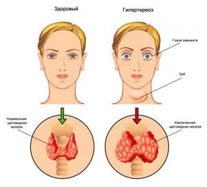 щитовидка у детей симптомы и лечение