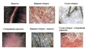 себорея симптомы и лечение у детей
