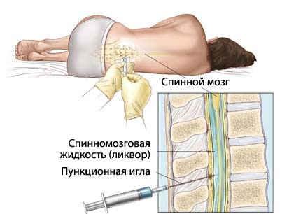 серозный менингит симптомы у детей лечение