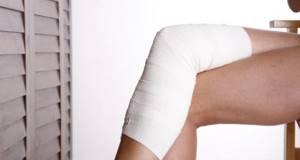 сеточка вен на ногах симптомы и лечение
