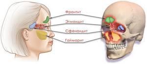 сфеноидит у детей симптомы лечение