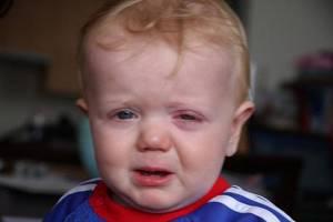симптомы и лечение коньюктивита у детей