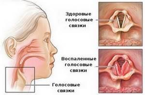 симптомы и лечение ларинготрахеита у детей