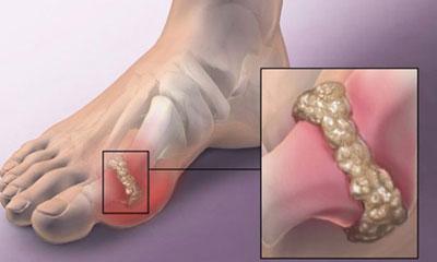 симптомы и лечение подагры на ногах