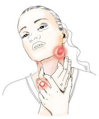 симптомы ларингита и фарингита лечение