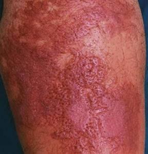 симптомы рожистого воспаления ноги и варианты лечения