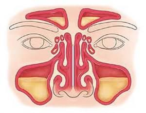 синусит и кашель симптомы и лечение