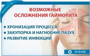 синусит с кашлем симптомы и лечение