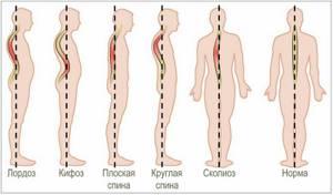 сколиоз симптомы и лечение у детей