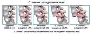 спондилолистез у детей симптомы лечение