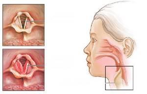 стенозирующий ларингит симптомы и лечение