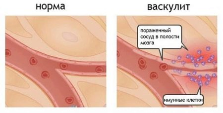 стрептококк симптомы и лечение у детей