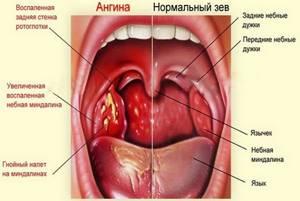 стрептококковая ангина симптомы лечение у детей